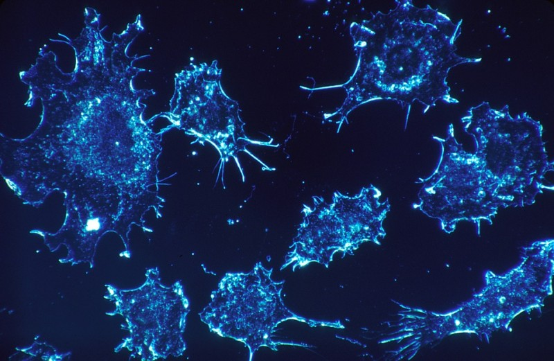 cancer-cells-scan