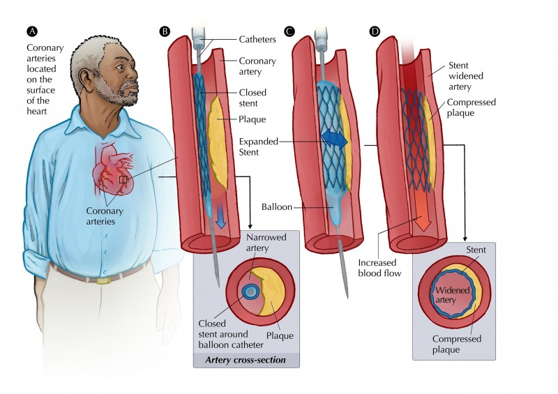 Stents and Pacemakers
