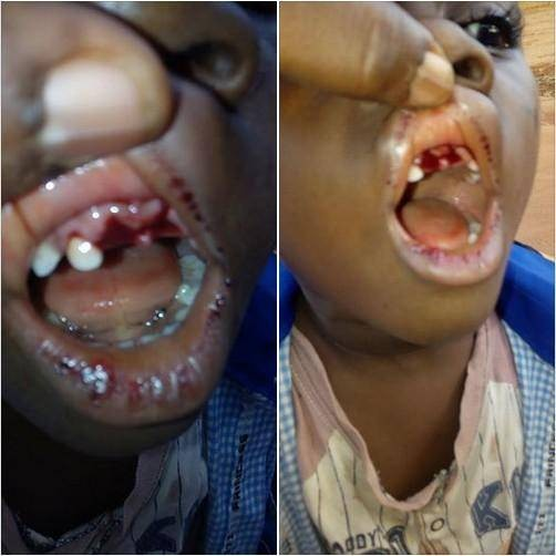 See Photo of What a Teacher Did to a 4-Year Old Pupil