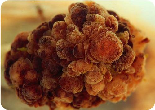 Cancer cell tumor