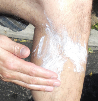 A photograph shows a person's hand as he or she applies a white cream to his or her leg.
