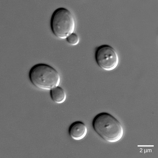 The photo shows yeast cells, some of which have buds protruding from them.