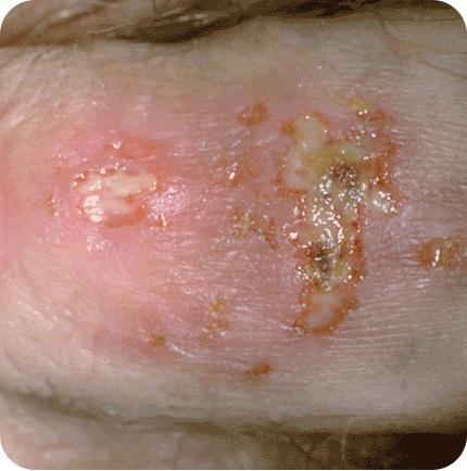 Genital Herpes blister