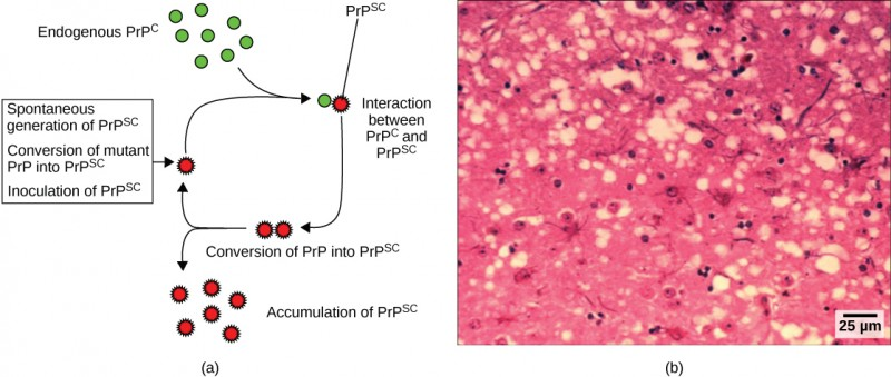 Part a illustrates how normal prion protein (PRP) is converted into the disease-causing form (PRP). PRPsc may spontaneously form in brain tissue, may be introduced when a mutant form of the protein misfolds, or may introduced into the brain tissue by inoculation. The misfolded protein causes normal PRP already present in the brain to misfold. A chain reaction occurs, leading to a large amount of misfolded protein.