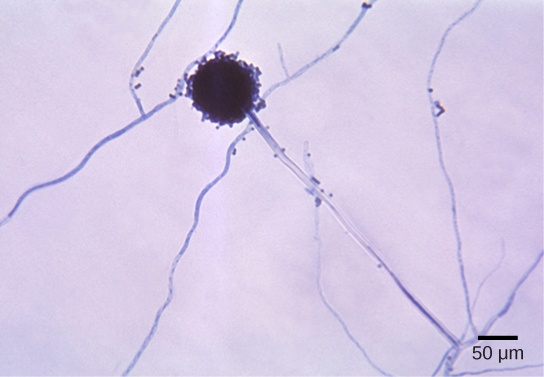 Micrograph shows Aspergillus mycelia, which look like long threads, and a spherical conidiophore about 40 microns across.