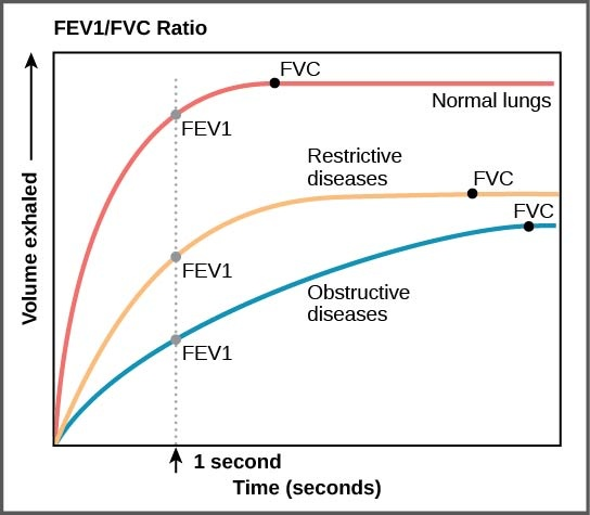The graph plots volume exhaled versus time. In normal lungs, almost all of the air can be forcibly exhaled within one second after taking a deep breath, resulting in a curve that rises steeply at first then plateaus shortly after one second. The volume at which the plateau is reached is the FVC. In lungs of persons with restrictive lung disease, the FVC is considerably lower but the person can exhale reasonable fast, resulting in a curve that is similar in shape, but with a lower plateau, or FVC, than for normal lungs. In lungs of persons with obstructive lung disease, the FVC is low and exhalation is much slower, resulting in a flatter curve with a lower plateau.