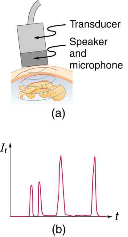 Ultrasound in Medical Diagnostics