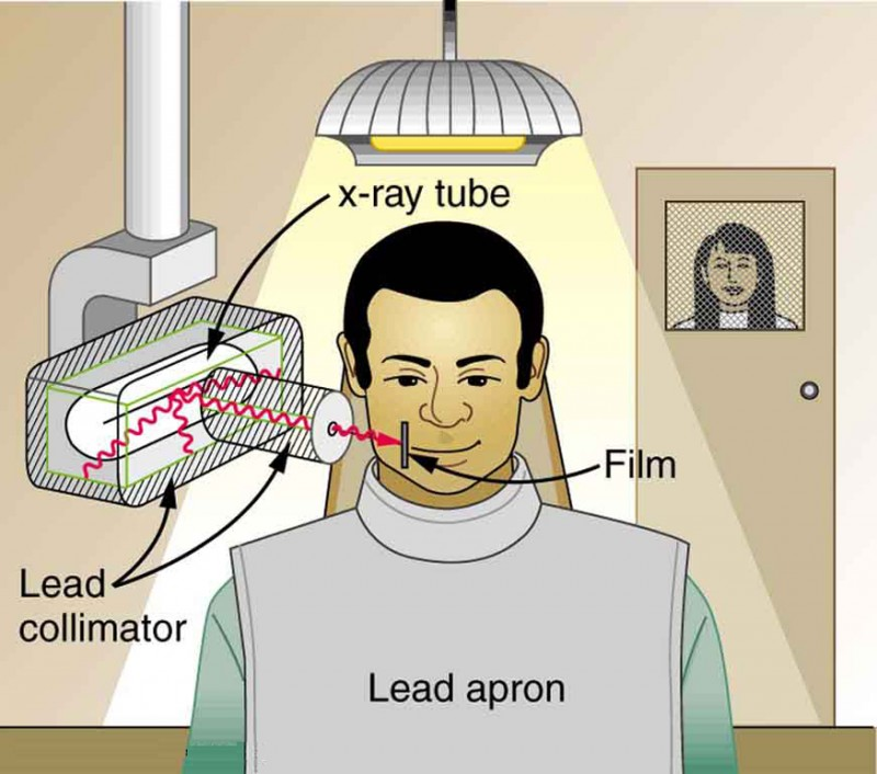 The image shows a dental patient wearing a lead apron sitting in a chair. X-rays emitting from an x-ray tube that is placed on the side of the patient's jaw are passing through only the affected area of his teeth.